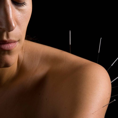 Acupuncture Chichester Natural Health Centre